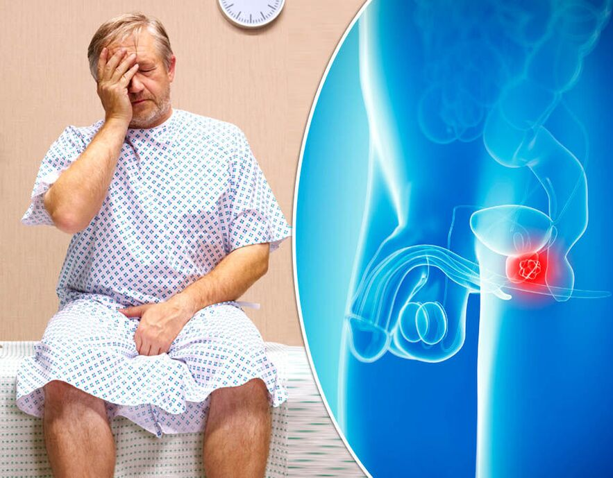 Leukocita intoxikációs index prosztatagyulladás esetén