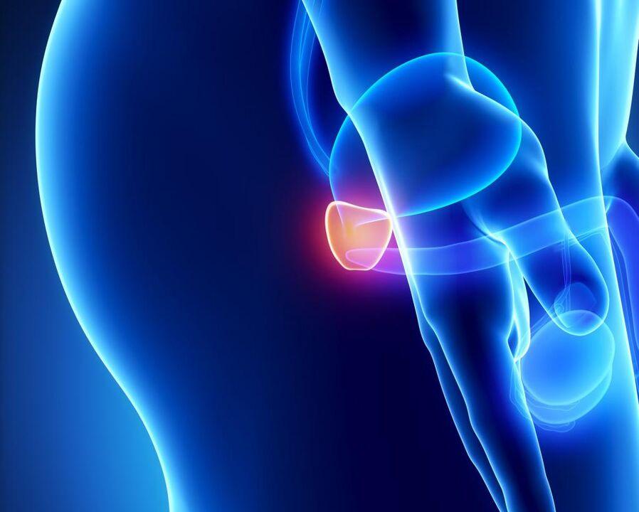 Prostatitis és leukociták a vérben)